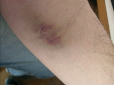 bruised arm after blood drawn