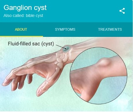 artistic rendering of a ganglion cyst
