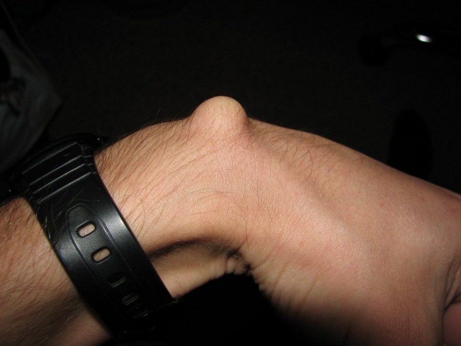 ganglion cyst on back of wrist