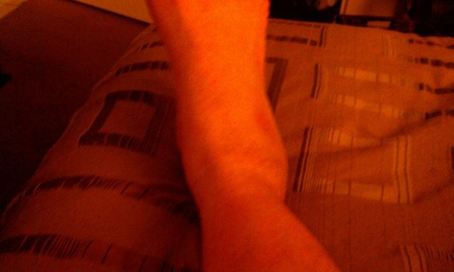 Author's sprained right ankle