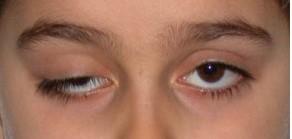 tired eyes